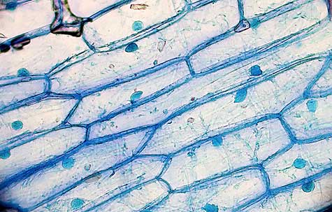 Onion cells 2-Umberto Salvagnin